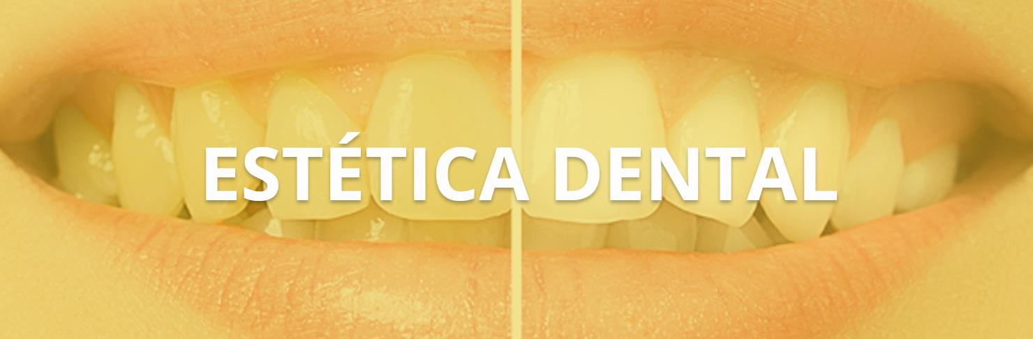 Estética dental en Vitoria