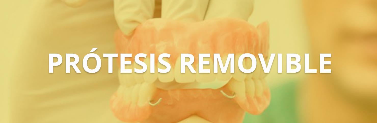 Prótesis Removible
